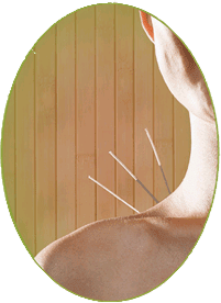 Acupuncture appiled painlessly