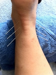 demonstration of acupuncture on ankle